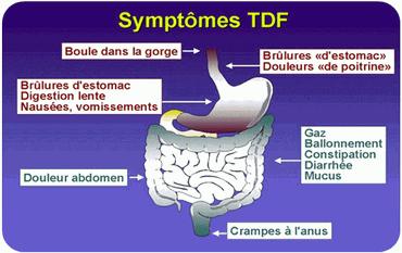 TROUBLES FONCTIONNELS INTESTINAUX - Colon irritable