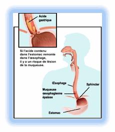 RGO3 - Le reflux gastro-œsophagien