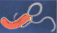 Ulcere - ulcère gastroduodénal UGD