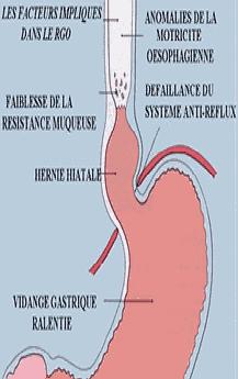 Rgo6 - Le reflux gastro-œsophagien