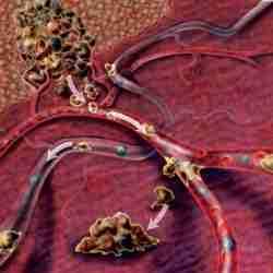 250px Cancer phase terminale - Cancer phase terminale