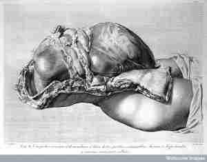 300px Anatomie uterus  - Anatomie uterus