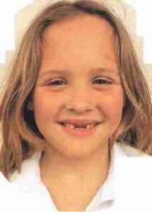dentition 215x300 - La dentition chez l'enfant
