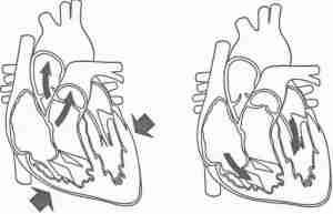 Le fonctionnement du cœur (systole/diastole)