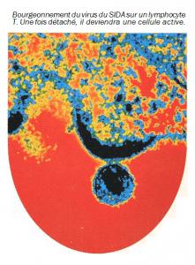 image sida 51 221x300 - Le mécanisme des rétrovirus