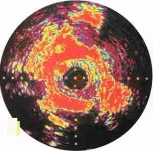 immg 300x295 - L'échographie : les images nées du son