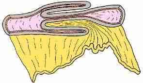 Le boudin d'invagination - Anatomie pathologique de l'invagination intestinale aigue