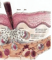 in - INFLAMMATIONS