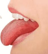 la - Homéopathie : Langue