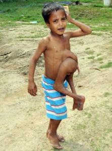 photo-malformation-inde