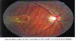 yeux ne fume 300x162 - Les rayons ultraviolets et la lumière bleue: