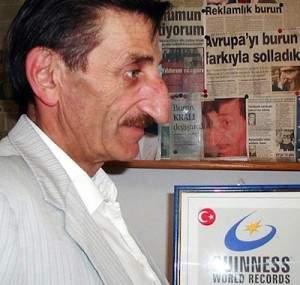 Mehmet Ozyurek biggest nose 300x285 - Le plus grand nez dans le monde