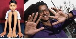 personnes avec 25 doits - Des personnes nées avec 25 doigts