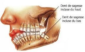 264 - Les dents de sagesse sont-elles utiles ?
