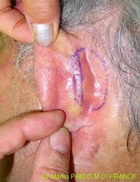 143 - Tumeurs de l'oreille externe