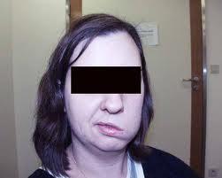 Atteintes du nerf facial:Paralysie faciale a frigore ou paralysie de ...