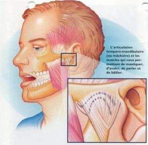 230 300x294 - Syndrome de l'articulation temporomandibulaire (ATM)