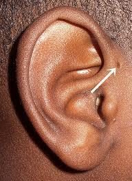 328 - Atteintes congénitales de l'oreille externe