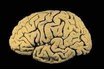 Pourquoi le cerveau a t il des plis - Pourquoi le cerveau a-t-il des plis?