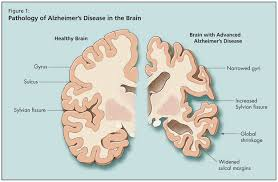 260 - Le vieillissement général : La sénescence et la sénilité