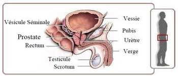 Adenome-prostatique