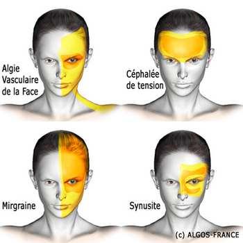 Algies vasculaires de la face