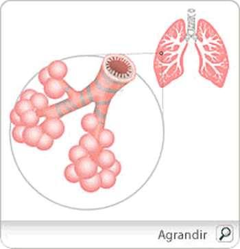 Bronchite aigue - L'inflammation aiguë des voies respiratoires