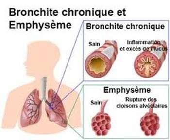 Bronchite chronique - Bronchite chronique
