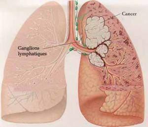 Cancer poumon 300x258 - Symptômes cancer poumons