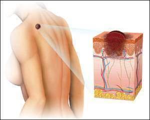 Mélanome et cancer de la peau