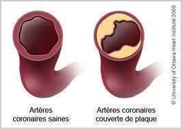 Maladie coronaire