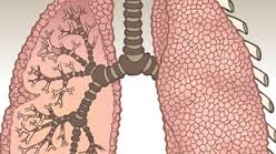 Maladie pulmonaire - Maladie pulmonaire