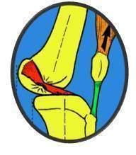 Mecanismes lesionnels des atteintes des ligaments lateraux - Les entorses du genou