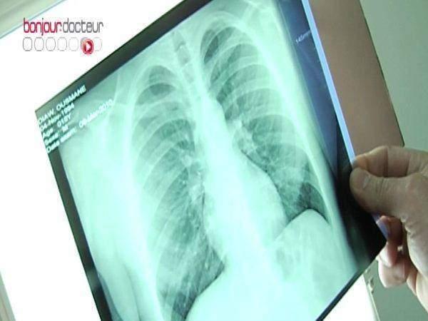 Revue des maladies respiratoires - Revue des maladies respiratoires