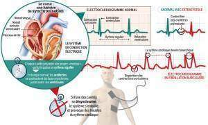 cardiaque 300x180 - Troubles du rythme cardiaque