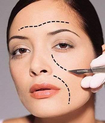 chirurgie esthétique visage - Chirurgie esthétique visage
