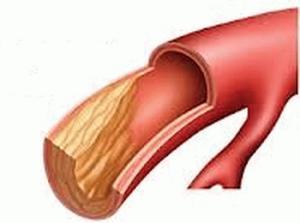 images 10 e1420799361127 300x223 - Cholestérol ldl