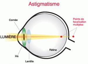 oeil astigmate schema 300x219 - Astigmatisme