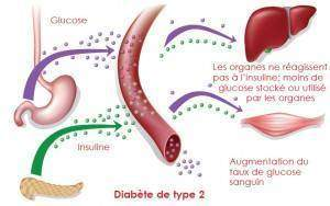 photo about diabetes 3 f 300x188 - Diabète de type 2