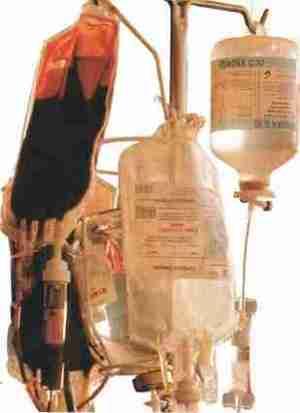 La reanimation Le sang compose complexe - La réanimation : Le sang composé complexe