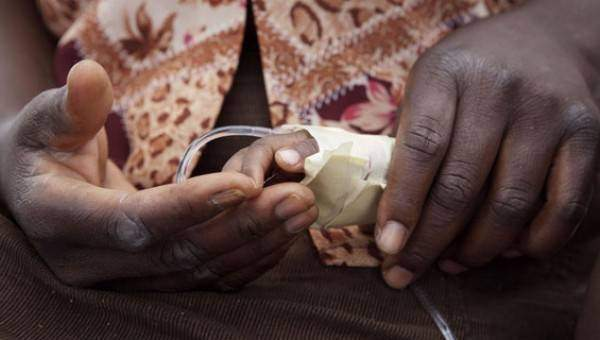 Les infections alimentaires Le choléra - Les infections alimentaires : Le choléra