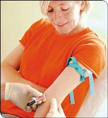 Le Cancer du sein le traitement hormonal de substitution - Le Cancer du sein : le traitement hormonal de substitution