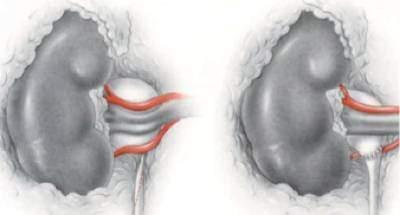 Le-syndrome-de-la-jonction pyelo-ureterale