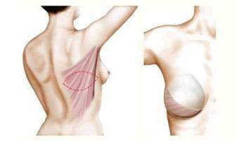 Les techniques de reconstruction mammaire - Le Cancer du sein : Les techniques de reconstruction mammaire