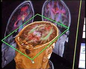 Cerveau-sexe-et-pouvoir-l-illusion-d-une-realite-virtuelle