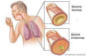 Comment sont faits nos bronches et nos poumons - Comment sont faits nos bronches et nos poumons ?