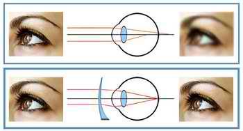 Je vois déformé l'astigmatisme - Je vois déformé : l'astigmatisme